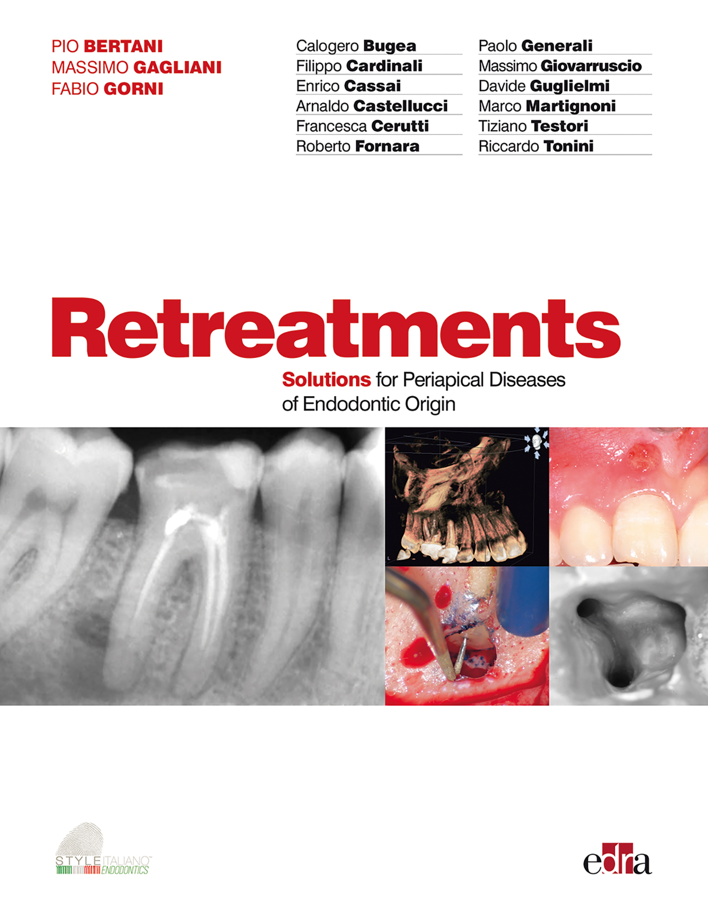 RETREATMENTS SOLUTIONS FOR PERIAPICAL DISEASES OF ENDODONTIC ORIGIN